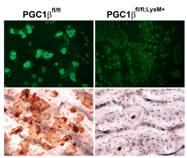 Project 3 PGC1 and osteoclast resized